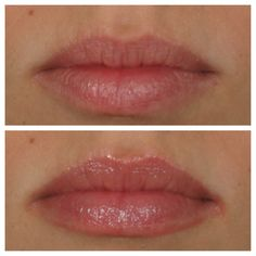 Lip plumping in 5 minutes.  Lip benefits $27 at Premier Laser & Day Spa