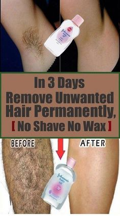 In 3 Days Remove Unwanted Hair Permanently, No Shave No Wax, Removal Facial & Bo. In 3 Days Remove Unwanted Hair Permanently, No Shave No Wax, Removal Facial & Body Hair Permanently Chin Hair Removal, Permanent Facial Hair Removal, Remove Unwanted Facial Hair, Natural Hair Removal, Hair Removal Diy, Hair Removal Remedies, Hair Removal Cream, Unwanted Hair, Natural Hair Styles