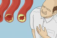 Žite dlhšie! Tu je 15 najlepších potravín na prečistenie vašich tepien a prevenciu infarktu myokardu