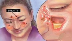 Kill Sinus Infection Within Minutes.Kill Sinus Infection Within Minutes.Kill Sinus Infection Within Minutes.Kill Sinus Infection Within Minutes. Infection Des Sinus, Nose Infection, Ear Infection Symptoms, Viral Infection, Natural Health Remedies, Natural Cures, Health And Beauty, Stress, Health Tips