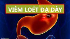VIÊM LOÉT DẠ DÀY: Dấu hiệu – Nguyên nhân – Hậu quả – Cách chữa trị Day, Movie Posters, Movies, Films, Film, Movie, Movie Quotes, Film Posters, Billboard