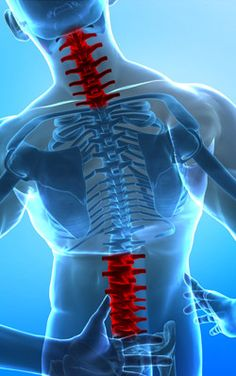There are two types of spinal stenosis: lumbar stenosis and cervical stenosis… Chronic Fatigue, Chronic Pain, Cervical Spinal Stenosis, Cancer Prevention Diet, Degenerative Disc Disease, Spine Health, E Motion, Cervical Cancer, Massage