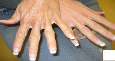 Você já parou para pensar como as mãos sofrem?Elas vivem em contato com vários produtos químicos, como detergente, sabão, entre outros produtos.E qual o resultado disso?Nada positivo: ressecamento e envelhecimento precoce da pele.