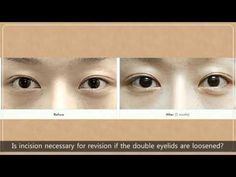 Do I Need Eyelid Revision, Eyelid Surgery Wonjin Facts And Concerns