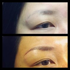 Laser eyebrow tattoo removal before and after tattoos for Best eyebrow tattoo san diego