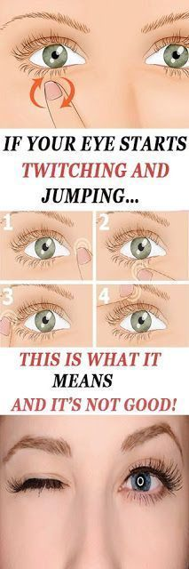7 Best EYE TWITCHING images in 2016 | Health, Health tips, Eye