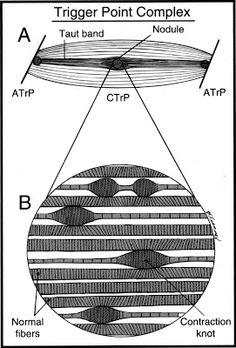 Acupuntura Contemporânea Contemporary Acupuncture Acupuncture Contemporaine: As Síndromes Dolorosas Miofasciais 2 - Pontos-gatilho. O que é preciso saber. --- Myofascial Pain and Trigger-points: What is there to be known?