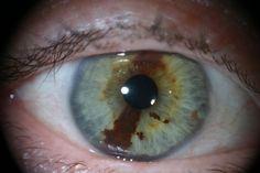 In der Naturheilkunde gelten die Augen nicht nur als Spiegel der Seele, sondern auch der Organe und des Menschen insgesamt. Die Iris kann vieles über Konstitution und Gesundheitszustand eines Mensc…
