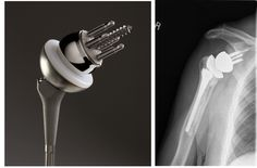"""Big Market Research adds a report """"Reverse Shoulder Arthroplasty Market - Size, Share, Global Trends, Company Profiles, Demand, Insights, Analysis, Research, Report, Opportunities, Segmentation and Forecast 2020""""  Get Complete Report @ http://www.bigmarketresearch.com/global-reverse-shoulder-arthroplasty-market"""