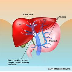 What Is Cirrhosis of the Liver? Symptoms,Treatment, Causes & Stages Liver Detox Symptoms, Liver Diet, Natural Blood Pressure, Lower Blood Pressure, Esophageal Varices, Digestive System Anatomy, Portal Hypertension, Feeling Stressed, Anatomy And Physiology