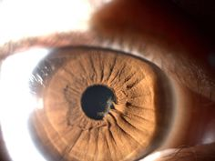 Posterior synechia - adhesion of iris to the lens capsule. A complete 360 annular adhesion can cause an increase of fluid in the posterior chamber and billowing of the peripheral iris forward called iris bombe