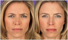Make Facial rejuvenation part of your regular dental checkups with Botox and dermal fillers from Franklin dentists, Kori & Everhart Advanced Dentistry.