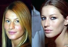 Clearly had a nose job. Clearly had a nose job. Plastic Surgery Gone Wrong, Veneers Teeth, Celebrities Before And After, Celebrity Plastic Surgery, Lip Injections, Fake People, Rhinoplasty, Just The Way, Hair Makeup