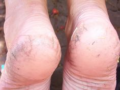 Case of the Heel Fissures? (Or, Help! I Have Cracked Heels!) Everett Podiatric Sports Medicine
