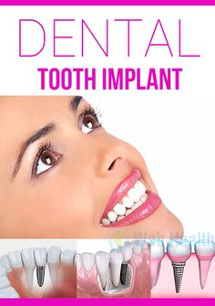 Dental implant treatment is a process through which artificial tooth is placed into your jaw to clutch a bridge, crown, denture, or a replacement tooth. : #healthy_living