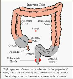 In the picture where the colon begins... is a pouch called the cecum. Waste flows into it from the small intestine by way of the ileocecal valve. Attached to the cecum is the appendix with an opening into the cecum. When sitting on a toilet the cecum can't be fully squeezed and waste can get stuck in the opening of the appendix and cause infection. If the the appendix is not removed via surgery before it bursts the outcome could be fatal. Squatting allows the cecum to be fully squeezed.