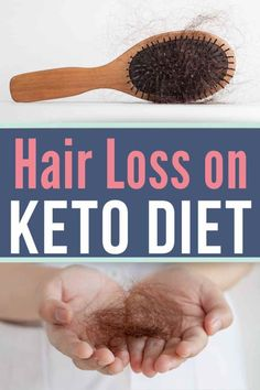 Are you experiencing hair loss on keto? Here are the top 6 reasons why and how to combat it. / keto diet / ketogenic diet / low carb diet / hair loss on keto / #keto #lowcarb #ArganOilForHairLoss Keto Hair Loss, Baby Hair Loss, Normal Hair Loss, Hair Loss Cure, Prevent Hair Loss, Argan Oil For Hair Loss, Best Hair Loss Shampoo, Biotin For Hair Loss, Biotin Hair