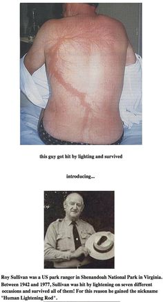 Roy Sullivan was the US park ranger who was struck by lightning 7 times between 1942 and 1977.