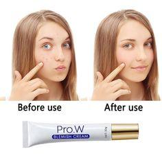 Acne Cream, Skin Cream, Dark Spot Removal Cream, Ear Wax Removal Tool, Pimple Scars, Remove Acne, Skin Care Tools, Facial Skin Care, Flawless Skin