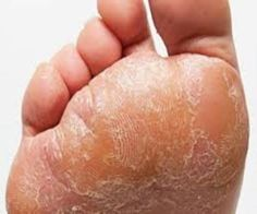How to Get Rid of Foot Fungus - http://www.howgetrid.net/how-get-rid-foot-fungus/