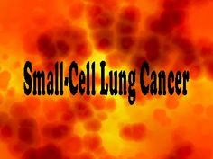 Combating Small Cell Lung Cancer with Upfront Immunotherapy Options. Tap to know. Lung Cancer Treatment, High Antioxidant Foods, Brain Healthy Foods, Positive Mental Attitude, Cancer Fighting Foods, Cancer Foods, Lunges, Helping People, The Cure