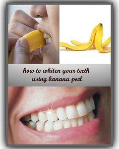 banana-peel-teeth-whitening-hacks-tips-tricks