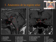 SERAM 2012 / S-0898 / Cómo interpretar un estudio de Resonancia Magnética de…