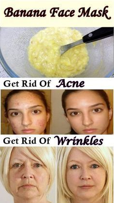 Get rid o f acne and Wrinkles really fast