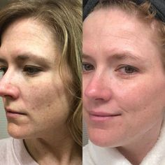 The Skincare Brand That Is Delivering Anti-Aging Results In 4 Steps | Emmy Lou Styles #AntiAgingFacial Anti Aging Facial, Facial Oil, Facial Masks, Anti Aging Skin Care, Image Skincare, Bright Skin, Diy Skin Care, Female Images, Skin Care Regimen