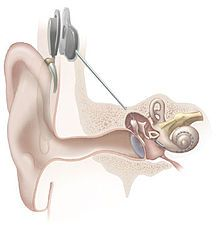 Hearing loss - see the pathophysiology