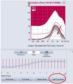 Clinical Management of Tinnitus Leanne Powers Tish Ramirez Tinnitus & Hyperacusis 12558