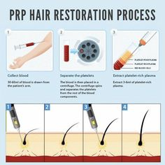 patients have seen GREAT results with PRP hair restoration, a non-surgical procedure that naturally stimulates hair growth. If you're experiencing hair loss or thinning hair, make an appointment with us and find out if PRP therapy is right for you! Prp For Hair Loss, Stop Hair Loss, Prevent Hair Loss, Natural Hair Loss Treatment, Hair Starting, Hair Loss Remedies, Hair Restoration, Strong Hair, Barbers