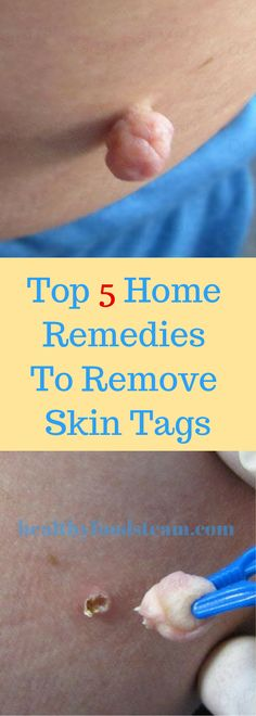 Top 5 Home Remedies To Remove Skin Tags - Tipps zur Babypflege Eye Stye Remedies, Skin Tags Home Remedies, Natural Remedies, Baby Care Tips, Skin Care Tips, Skin Tips, How To Get Rid, How To Remove, Remove Skin Tags Naturally