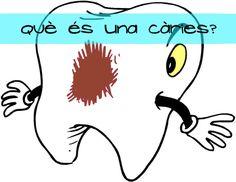 Comencem la setmana parlant de #càries, aquella paraula que a ningú li fa gracia escoltar quan ve al #dentista.  La caries apareixen quan les dents es deteriores o es trenquen, i són un forat que es fan a les dents i que, amb el temps, pot fer-se més gran. Per tant... si en tens alguna, vine a Clínica Dental Torres!! www.clincadentaltorresygingiva.com #Figueres #dentista #clínica #dental