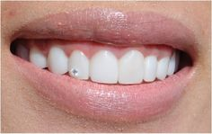 Put a little bling in your grin! To really give our patient the extra sparkle sh. - Put a little bling in your grin! To really give our patient the extra sparkle she was looking for b - Diamond Teeth, Tooth Diamond, Tooth Gem, Grills Teeth, Dental Cosmetics, Teeth Bleaching, Natural Teeth Whitening, Grillz, White Teeth