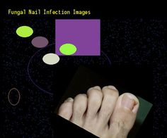 Fungal nail infection images - Nail Fungus Remedy. You have nothing to lose! Visit Site Now