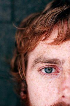 Scott - Freckles by mourninghasbrokn