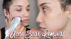 Nighttime Skincare Routine For Acne Scar Removal - http://urbangyal.com/videos/nighttime-skincare-routine-acne-scar-removal/