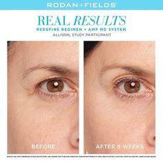 yourluxeskin   1 likes  1 comments REDEFINE + AMP MD micro-exfoliating roller + Retinal serum (20x the potency of retinol) + 8 weeks of consistent use = Allison's results . Incredible change.  The whole lid and brow looks lifted, and the crows feet have reduced . This retinal serum is a NEW product to the market and will be available in the next few weeks in USA + Canada, and AUS in 2018. DM to be added to my waiting list, and I'll keep you updated. . XO, Alaina…