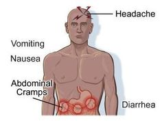 Some of the symptoms of a cholera infection includes severe headaches, vomiting, nausea, abdominal cramps, and diarrhea.