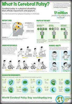 Hemiplegia cerebral palsy info