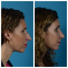 Rhinoplasty - Improve the appearance of the nose, while optimizing its function such as improved breathing and chronic sinus problems. #brobstfacialplasticsurgery  #weonlydofaces