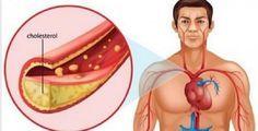 Estes são os alimentos e receitas que vão desentupir suas artérias em 30 dias!