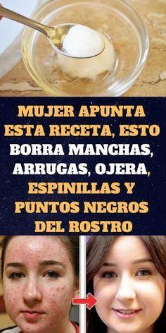 Té de plátano y canela para dormir como bebés #remedios #lasaludprimero #bienestar