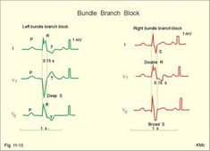 Right and left bundle branch block