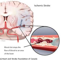 Nursing Care Plan for Stroke with Nursing Diagnosis Vascular Dementia Symptoms, Stages Of Dementia, Lewy Body Dementia, Alzheimer's Symptoms, Vascular Disease, Dementia Signs, Dementia Care, Ems, Heart And Stroke Foundation