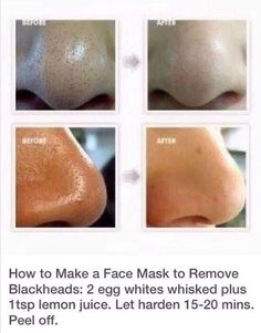 Get rid of blackheads fast with this simple face mask.