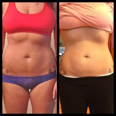 Belly button ring weight loss experiment. Click the link to see the study!!!