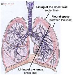 Did you know? When you breathe, the linings of your lung and chest wall glide against each other. If they get inflamed, that can feel like two sores rubbing together. Here are four things that can cause that and what to do when getting to a doctor is impossible.