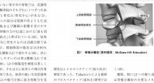 脚痩せに悩む女性ほど「腰痛が多い」3つの原因 http://ameblo.jp/exercisebible/entry-12260416324.html